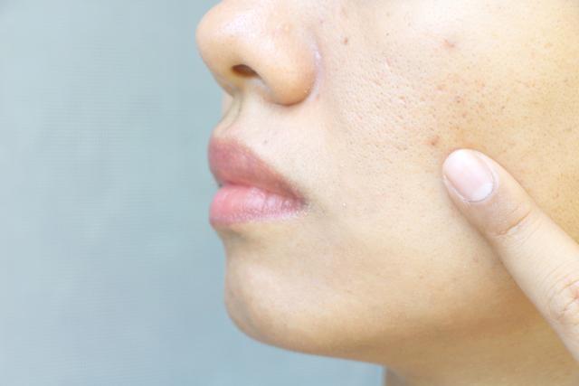 肌に問題を持つ女性